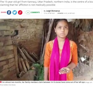 左目から排出されたという石を見せる少女(画像は『The Daily Star 2021年9月24日付「Doctors baffled as girl cries stone tears, shedding 15 rocks per day」(Image: Jam Press Vid/Rare Shot News)』のスクリーンショット)