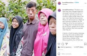 4人が同じ顔の症状を持つきょうだい(画像は『Born Different 2021年9月22日付Instagram「The fact is, our faces they have changed shape」』のスクリーンショット)