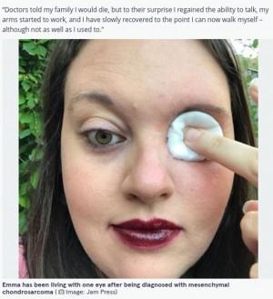 稀な悪性腫瘍で左の眼球を摘出した女性(画像は『The Mirror 2021年9月24日付「Woman, 34, can blow out candles through eye socket after having her eyeball removed」(Image: Jam Press)』のスクリーンショット)